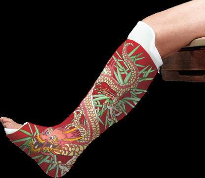 Casts surgical plaster casts fiberglass casts plastic for Arm cast decoration ideas