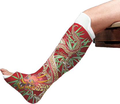 Casttoo Lets You Decorate Your Surgical Cast With Tattoo Decals