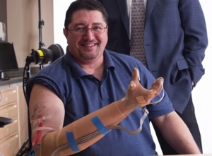 bionic-sensing-hand-2